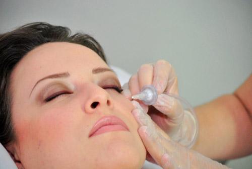 carboxiterapia facial frailebasanta