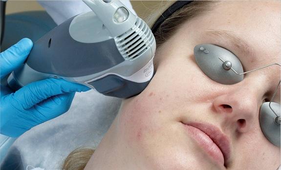 Isolaz: Eliminación del acné sin fármacos