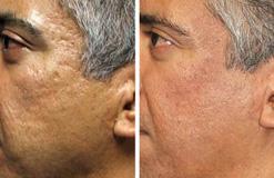 Fraxel: tratamiento de las cicatrices del acné